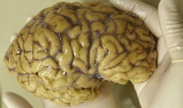 Факты о мозге: 31 факт который известен не всем