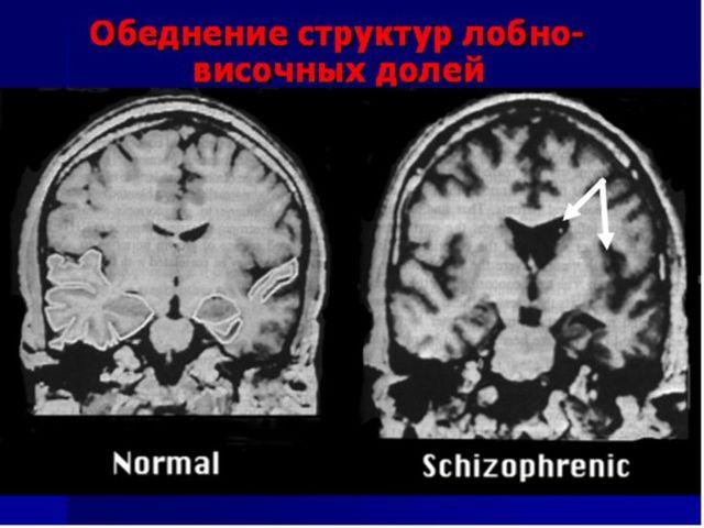 Основные причины шизофрении: симптомы и проявление